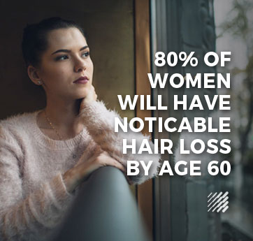 Female Hair Loss Information